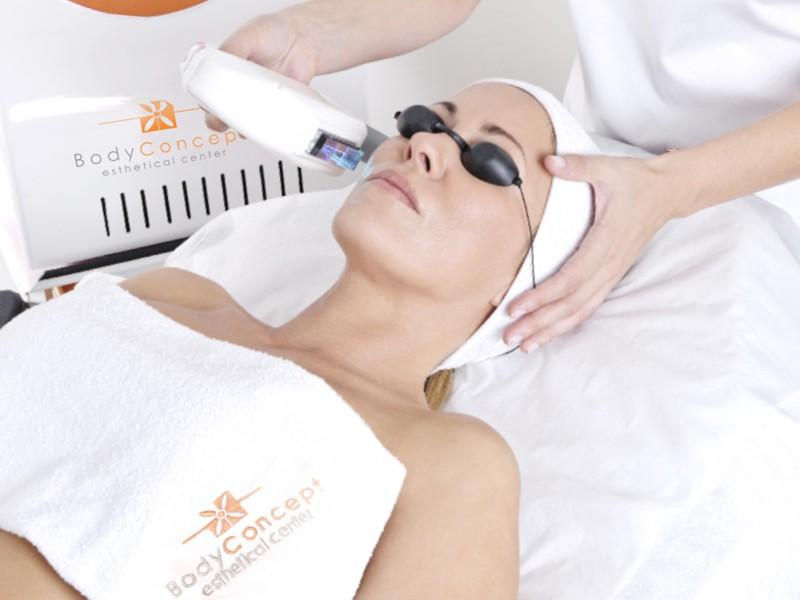 Fototerapia Derrames BodyConcept